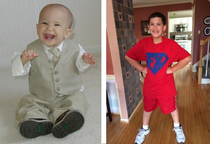 Justin has Fragile X Syndrome