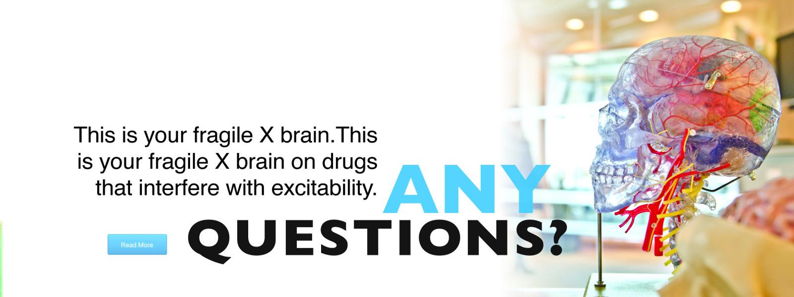 fragile X brain research