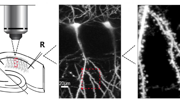 Enhancing NMDA Receptor Signaling to Treat Fragile X Syndrome